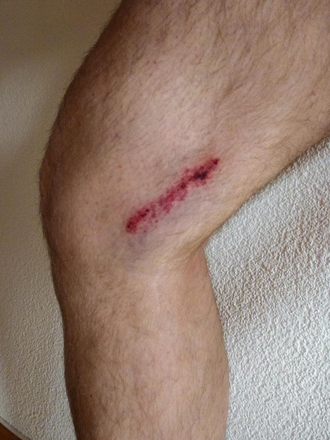 Mein Bein, nachdem ich in einen Steinschlag geraten bin.